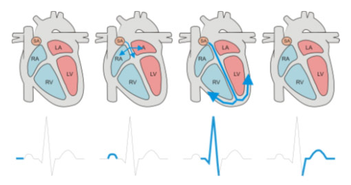 Schematic explanation of  RA, LA, RV, LV parameters and their visualization on Heart Rate