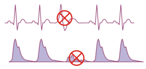 Example of an abnormal heartbeats