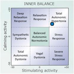 Autonomic Balance Diagram
